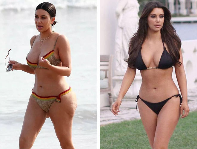 Ким Кардашьян до и после липосакции