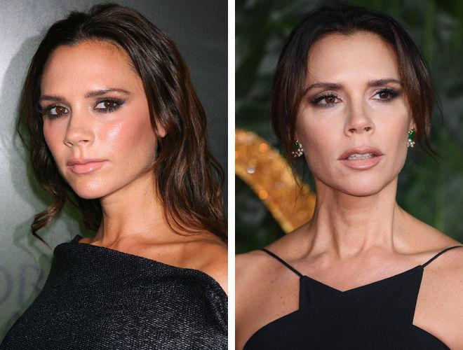 Виктория Бекхэм до и после контурной пластики