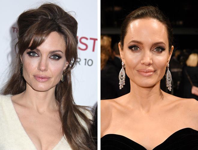 Анджелина Джоли до и после контурной пластики