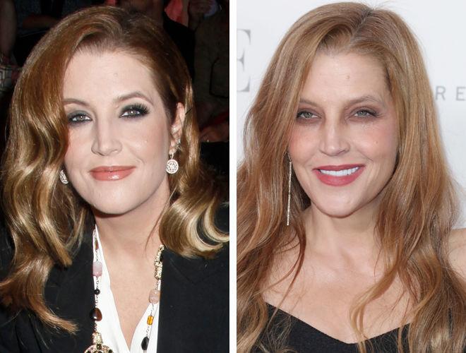 Лиза Мария Пресли до и после контурной пластики