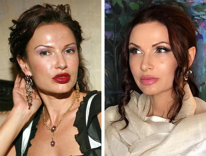 Эвелина Бледанс до и после контурной пластики