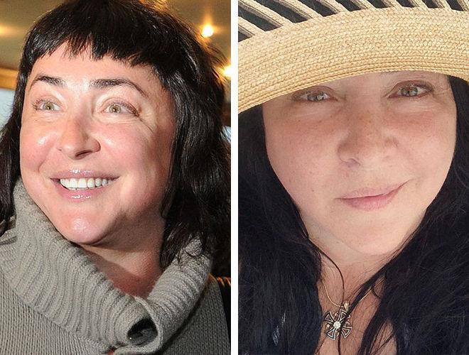 Лолита Милявская до и после контурной пластики