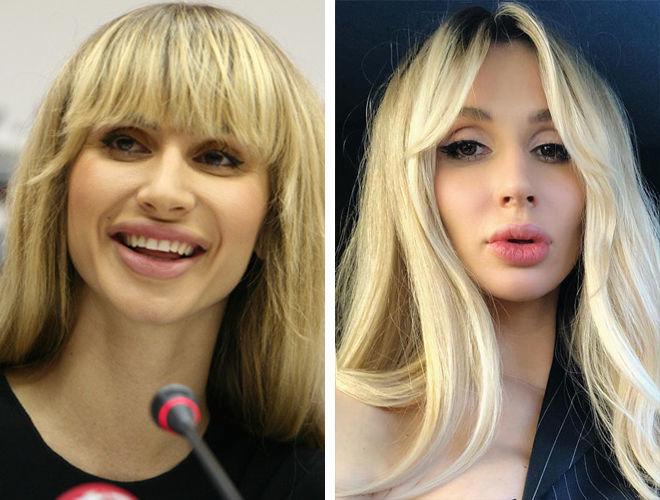 Светлана Лобода до и после контурной пластики